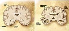 آلزایمر و بیماری های مشابه