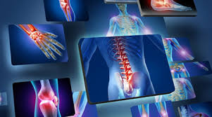 دانلود پاورپوینت درد مفاصل و روشهای درمان